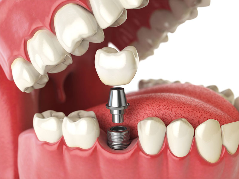 Best implant dentistry